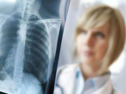 Concorso per 16 Tecnici di Radiologia a Tivoli –  ASL Roma 5