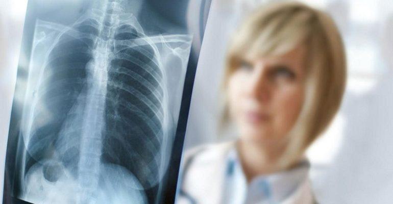 Bandito il concorso per 18 Tecnici Radiologi Asl Bari
