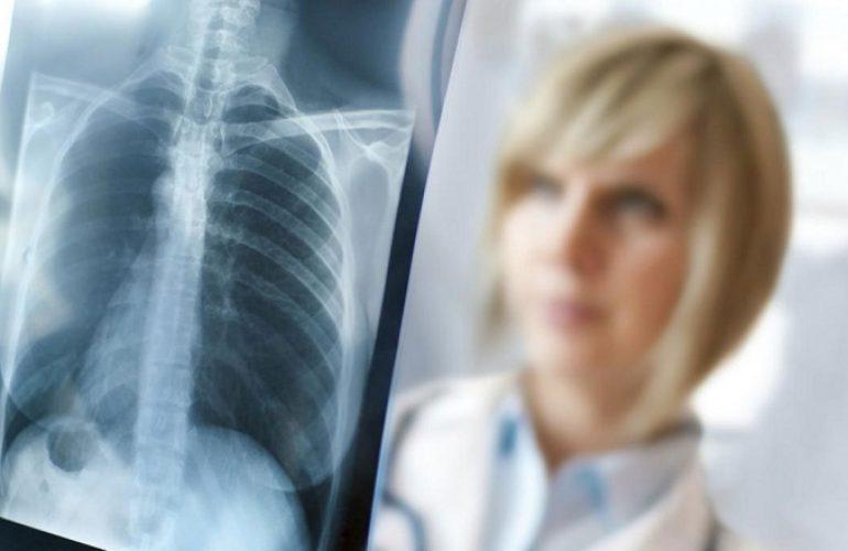 Concorso per tecnici di radiologia medica all'IRST Meldola in provincia di Forlì Cesena