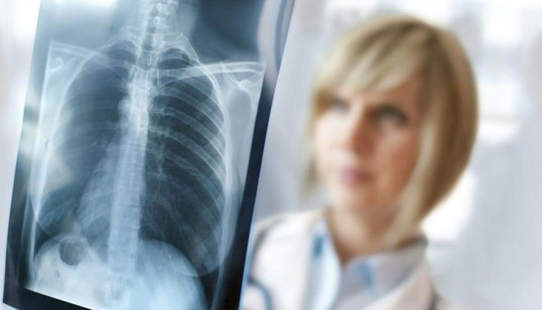 Tecnici Radiologi