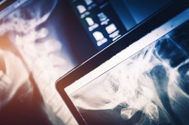 Concorso per 22 tecnici di radiologia a Collegno e Chieri