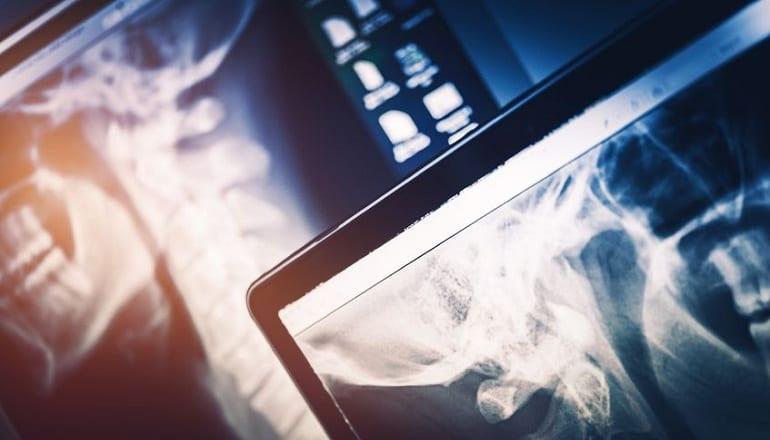 concorsi tecnico di radiologia