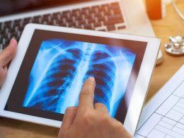 Concorso per 8 tecnici di Radiologia all'ASL Lanciano – Vasto – Chieti