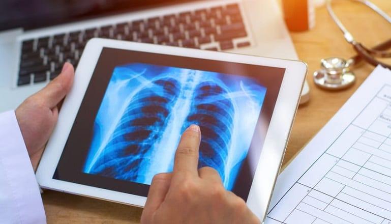concorso-tecnici-di-radiologia
